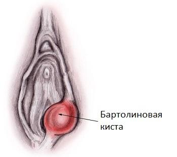 Бартолиновая киста