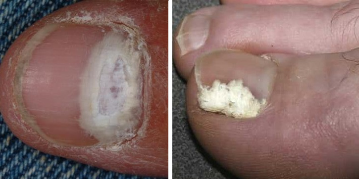 Белые пятна от грибка на ногтях ног