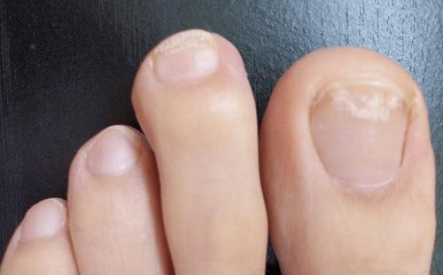 Белые пятна на ногтях ног из-за дефицита питательных веществ