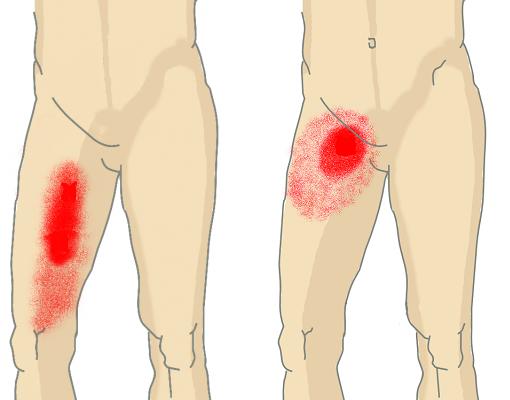 Места локализации боли на внутренней стороне бедра