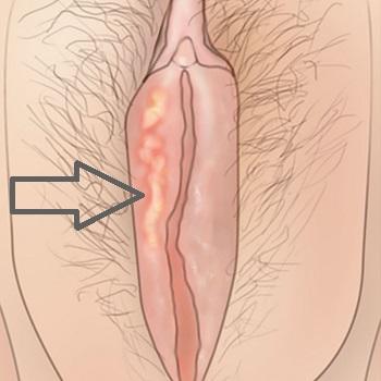Генитальный герпес на половой губе