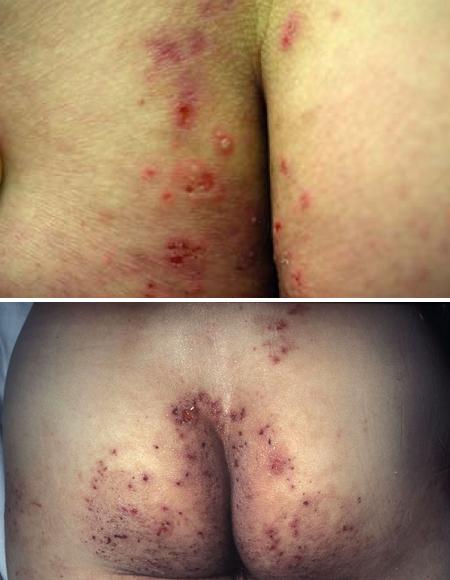 Герпетиформный дерматит на ягодицах