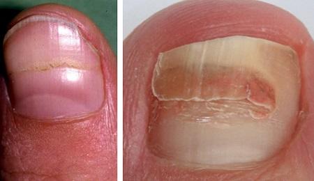 Горизонтальная трещина на ногте