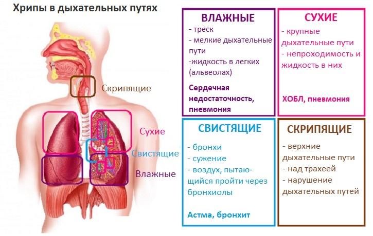 Причины, симптомы, виды хрипов в легких