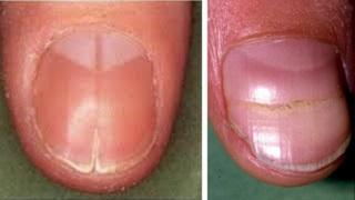 Ногти с трещинами посредине