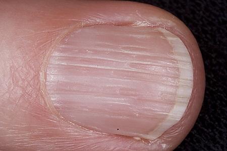 Ногти при старении