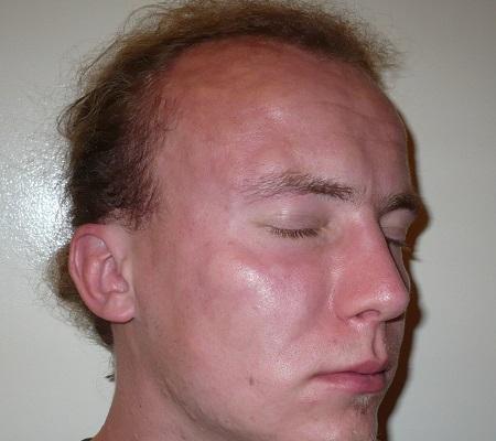 Шишки на лице и лбу при ангионевротическом отёке