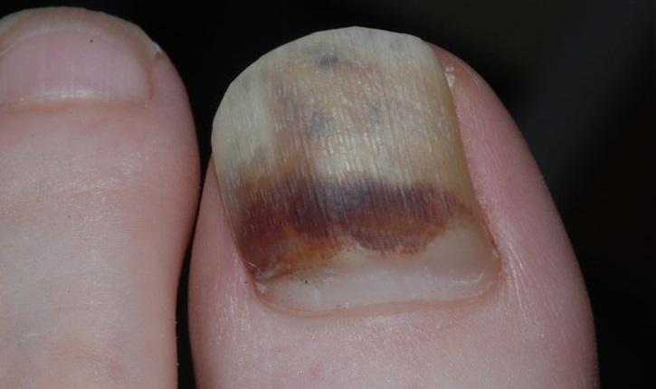 Подногтевая гематома большого пальца ноги