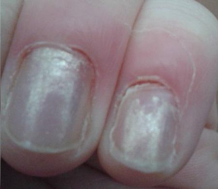 Потрескавшиеся ногти вокруг кутикулы