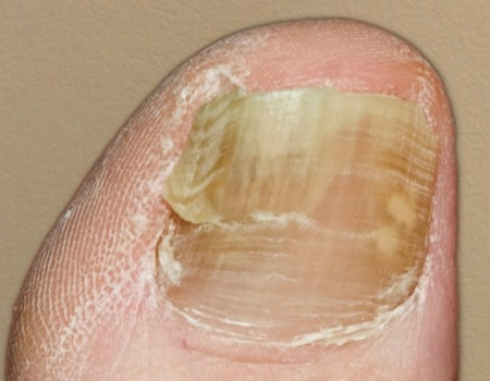 Треснувший ноготь из-за грибка