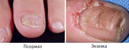 Трещины ногтей  при псориазе и экземе