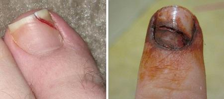 Треснувший ноготь в результате травмы