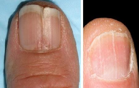 Вертикальные трещины на ногтях