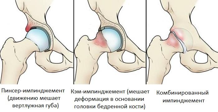 Типы импинджемента тазобедренного сустава