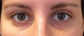 Темные круги вокруг глаз из-за возраста