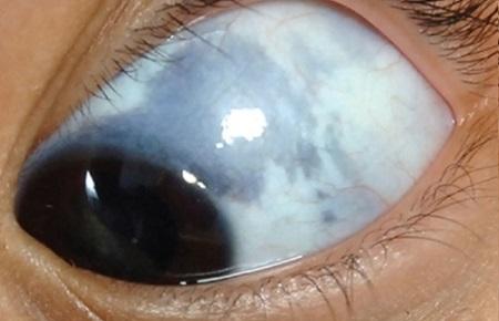 Серое пятно на глазу при глазном меланоцитозе