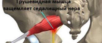 Грушевидная мышца защемляет седалищный нерв