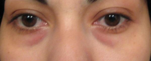 Потемнение под глазами при аллергии