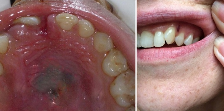 Темные травмы слизистых рта