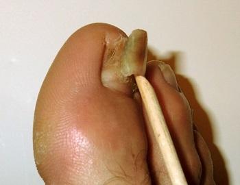 Отслоение ногтя при грибке