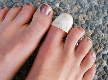 Повязка на ногте
