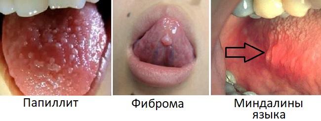 Причины бугорков и шишек на языке