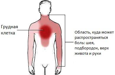 Симптомы растяжения грудных мышц
