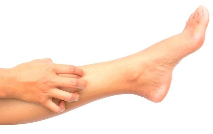 Зуд нижней части ног