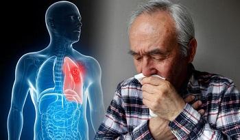 Першение в горле и рак легких