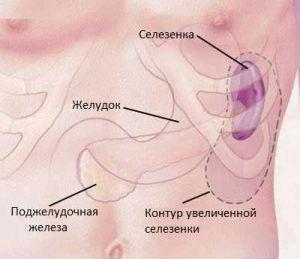Увеличенная селезенка под ребрами