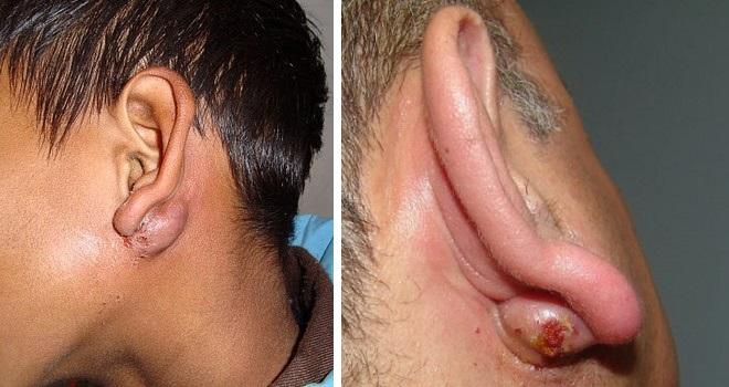 Абсцесс за ухом