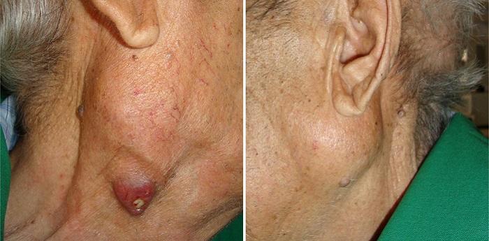 Инфекция околоушной железы