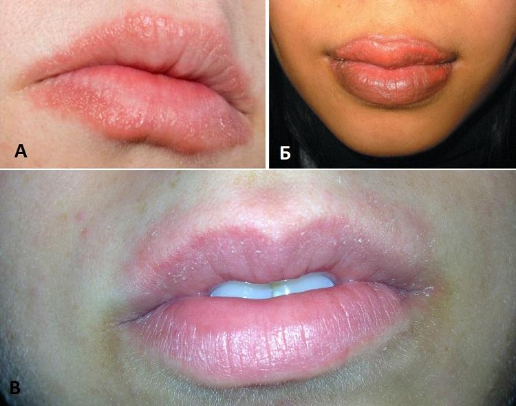 Аллергическая реакция на губах на помаду, бальзам и татуаж