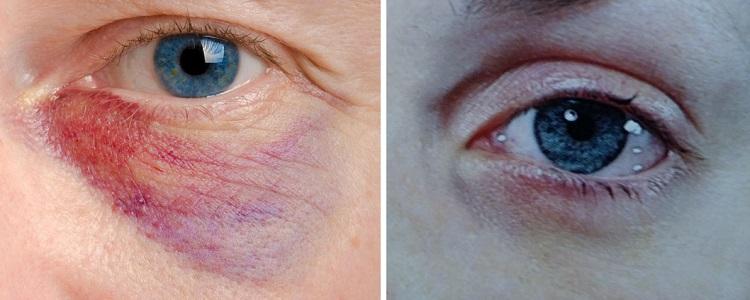 Темные круги под глазами из-за аллергии