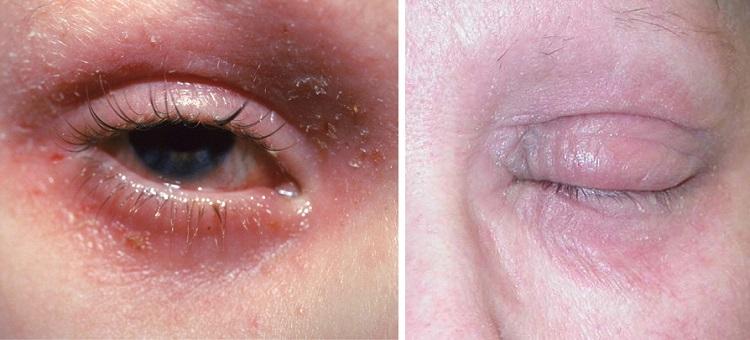 Атопический дерматит вокруг глаз у ребенка и взрослого