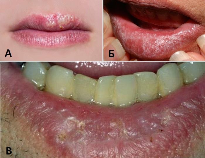 Красный плоский лишай, герпес и актинический кератоз на губах