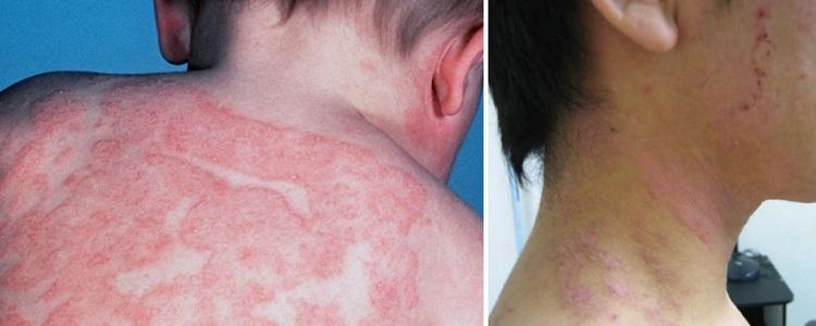 Атопический дерматит на спине, шее и плечах ребенка и подростка