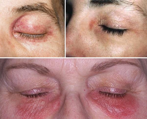 Контактный дерматит вокруг глаз