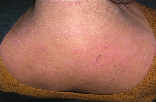 Контактный дерматит на шее и плечах