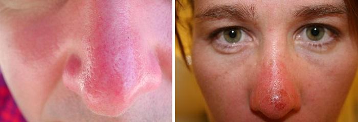 Обгоревший на солнце нос
