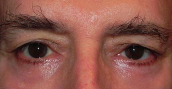 Покраснение вокруг глаз у пожилых