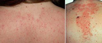 Себорейный дерматит на спине и шее