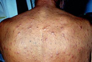 Сыпь на спине при вторичном сифилисе