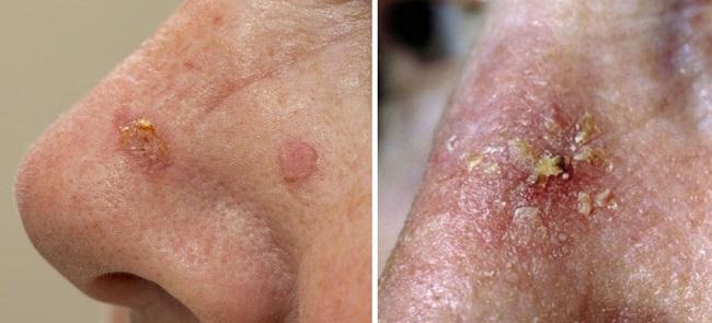 Актинический кератоз на носу