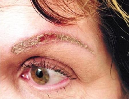 Аллергический контактный дерматит на брови