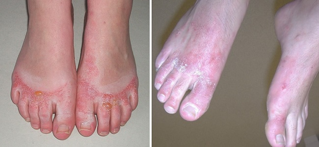 Аллергический контактный дерматит на пальцах ног