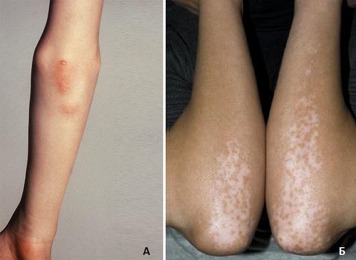 Сыпь на локтях при аутоиммунных нарушениях
