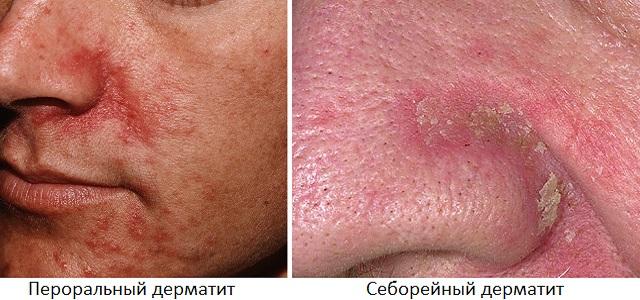 Сравнение себорейного и перорального дерматита