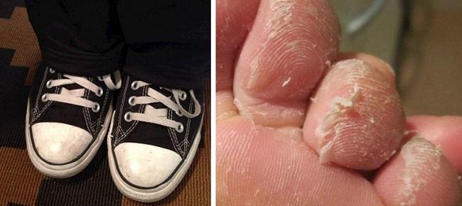 Дерматит пальцев ног у ребенка из-за обуви