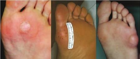 Эпидермальные кисты возле пальцев на стопе
